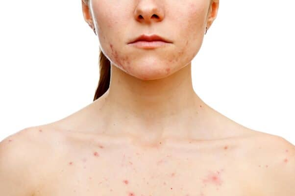 What causes pimples on the neck?